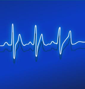 Elektrokardiograf - zobacz jak działa